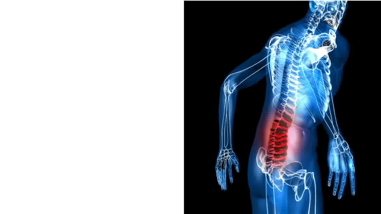 Spine Functional Restoration Program